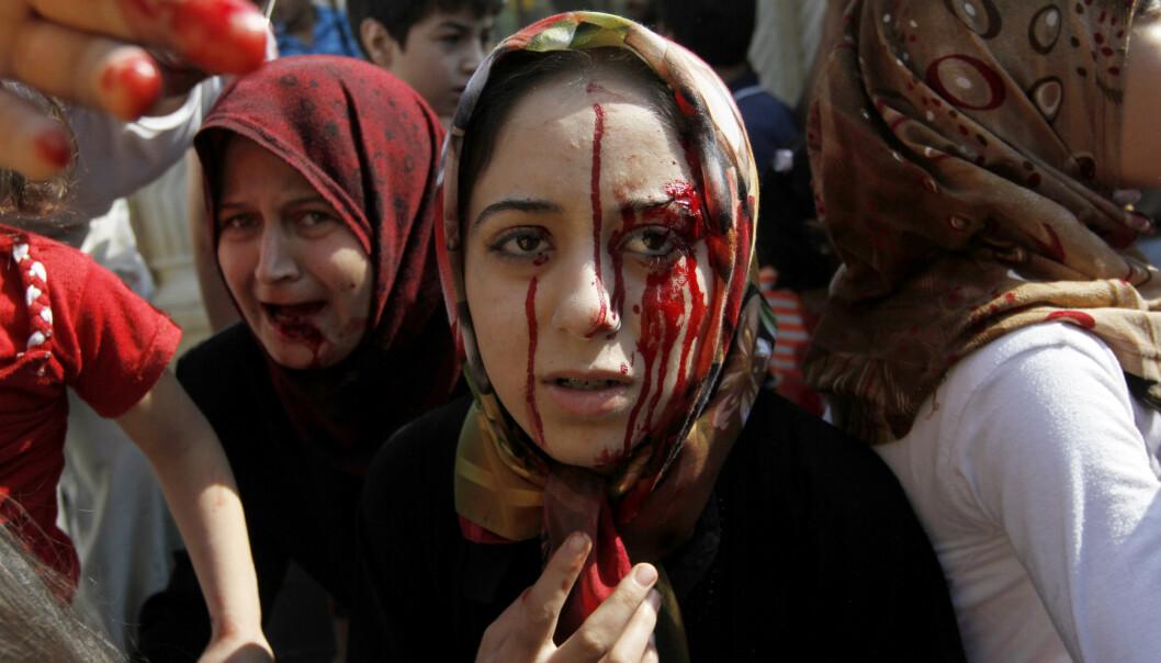 OFRE: Det syriske folk er blant dette århundrets største ofre, sier FNs spesialutsending til landet, den norske diplomaten Geir O. Pedersen. Denne kvinnen ble såret i et flyangrep utenfor Aleppo i august 2012.