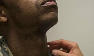 Skjeggregler fører til diskriminering, viser studie gjennomført av militære hudleger